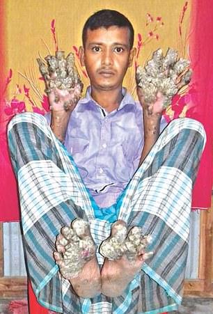 現實版的Groot?!他現在就在孟加拉!